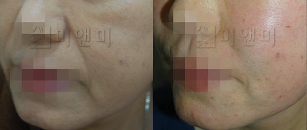 얼굴전반적인 주름과 탄력개선 + 볼륨필러